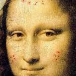 Mona_Lisa_acne_C